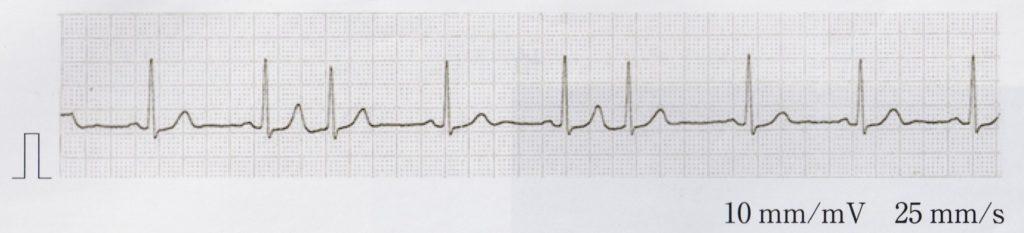 心電図を示す。この心電図の所見で正しいのはどれか。