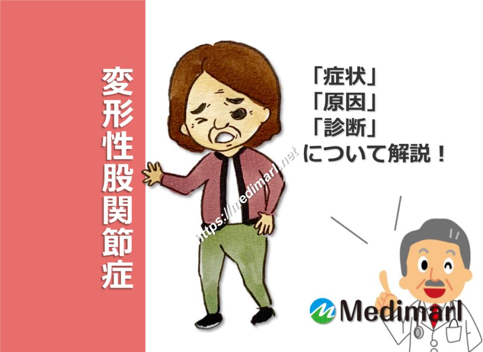 変形性股関節症の症状、原因(病態)、診断について