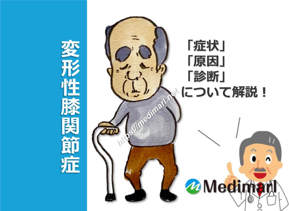 変形性膝関節症の症状、原因(病態)、診断について